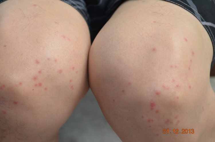 mosquito beaten knees